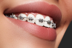 braces fitted